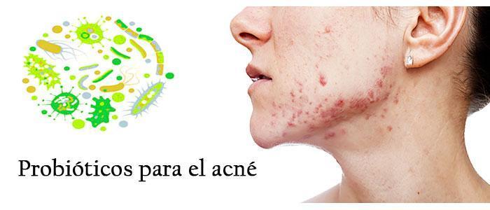 Tratamiento del acné con probióticos S. boulardii